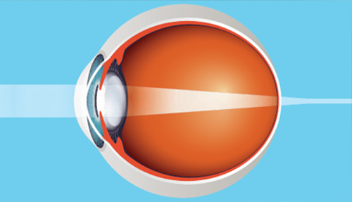 Eye treatment options
